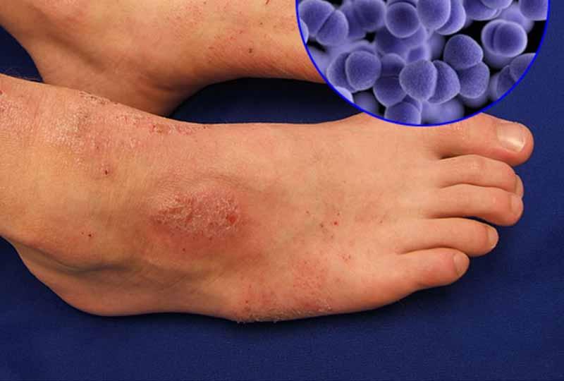 Da chân không được chăm sóc dễ sần sùi và nhiễm trùng