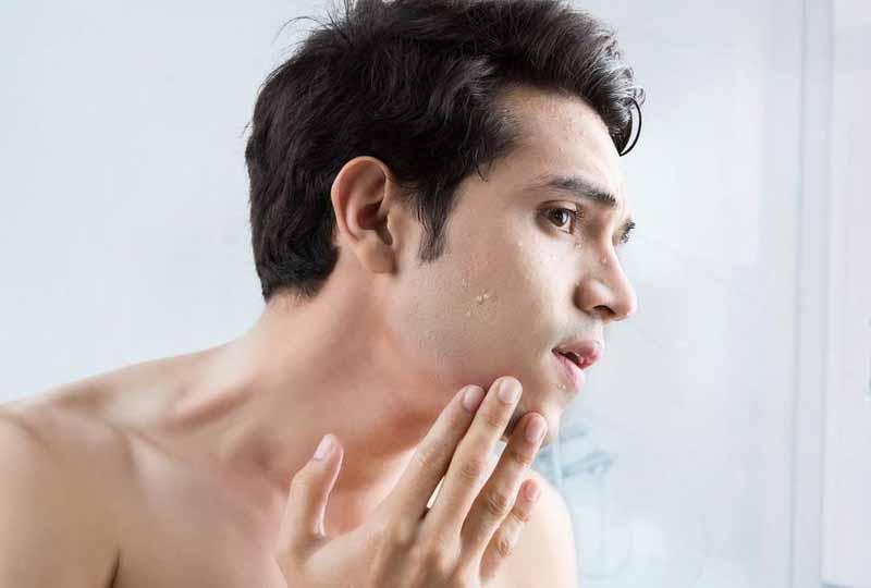 Để chăm sóc da đúng cách bạn phải hiều về làn da của mình