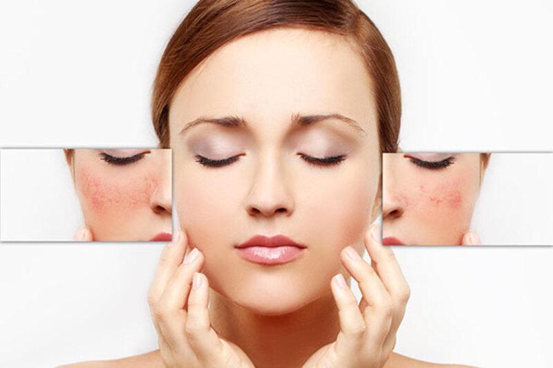 Loại da này dễ khô căng và phản ứng mạnh mẽ với những sự thay đổi của môi trường