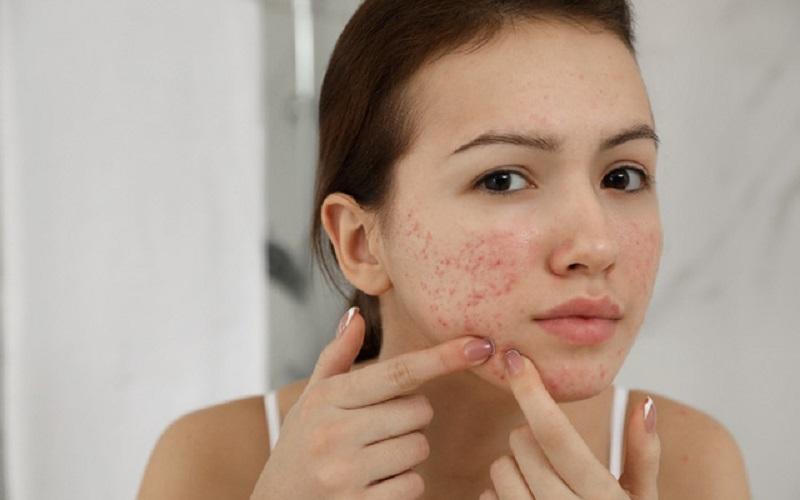 Những người có da bị mụn nên tới spa để được tư vấn chăm sóc và điều trị