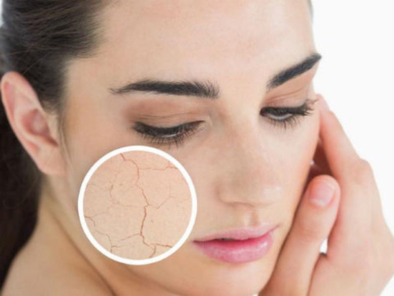 Người đang bị da khô sẽ cảm thấy khó chịu và dễ bị bong tróc