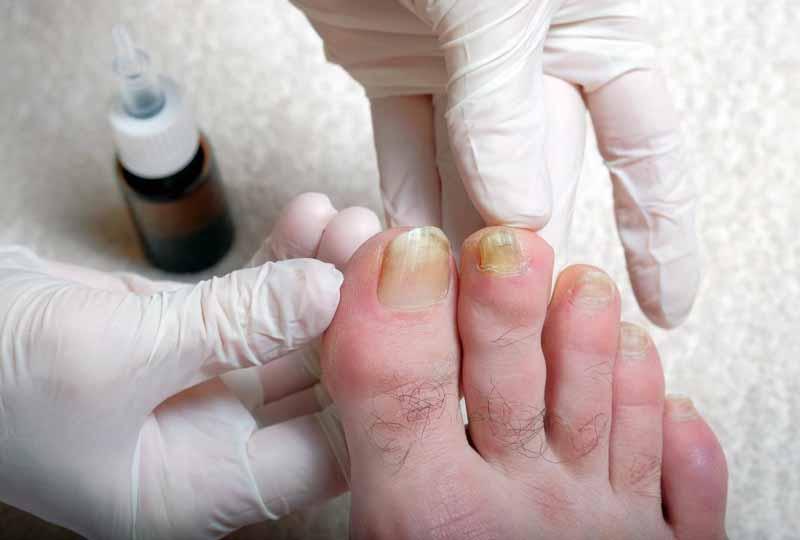 Thường xuyên chăm sóc móng để sớm phát hiện các bệnh lý của móng