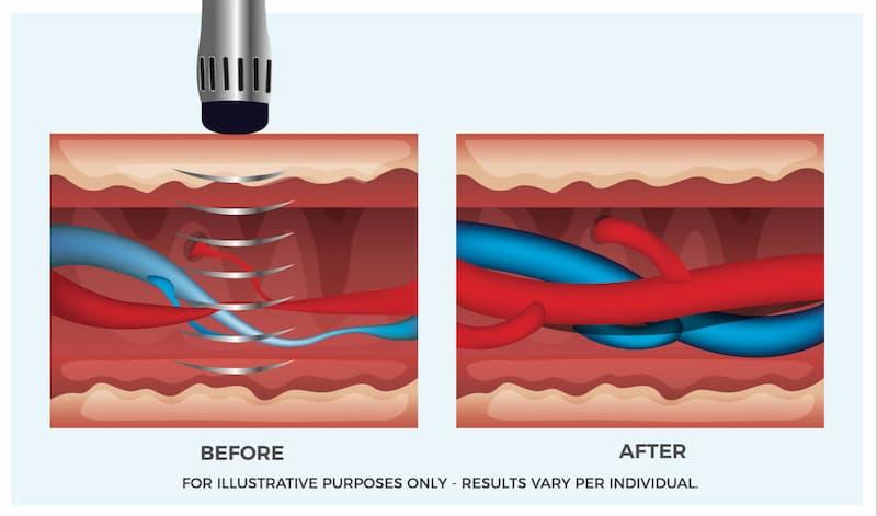 Sóng xung kích có thể kích thích sự giãn nở của mạch máu