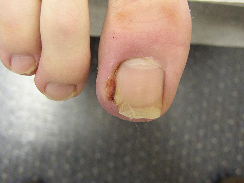 Sau vài ngày bạn có thể dùng bấm móng, kéo để loại bỏ phần móng chân bị h