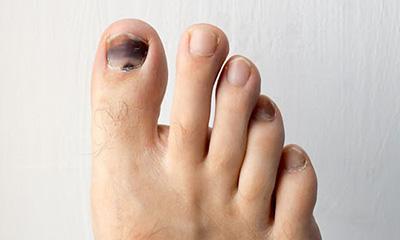 Hướng dẫn bạn cách chăm sóc móng chân bị bật an toàn ngay tại nhà