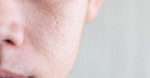 Lỗ chân lông to là tình trạng da thường thấy hiện nay, gây ảnh hưởng không nhỏ đến thẩm mỹ