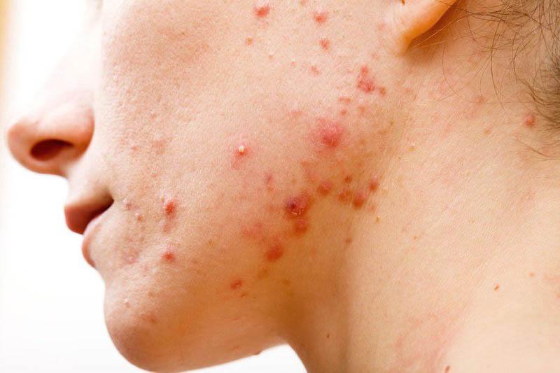 Độ ẩm trong không khí thường ở mức thấp khiến cho làn da dễ bị khô, nứt nẻ