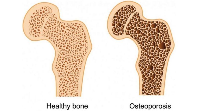 Bạn có biết loãng xương là gì