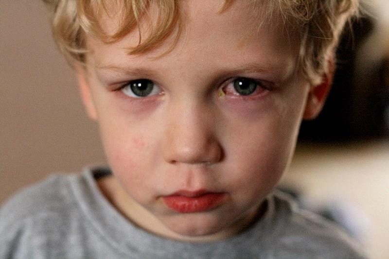 Tình trạng thiếu vitamin A thường xảy ra ở trẻ em và gây ra nhiều vấn đề sức khỏe nguy hiểm
