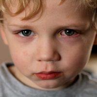 Thiếu vitamin A có thể gây ra nhiều vấn đề sức khỏe, nhất là đối với trẻ nhỏ