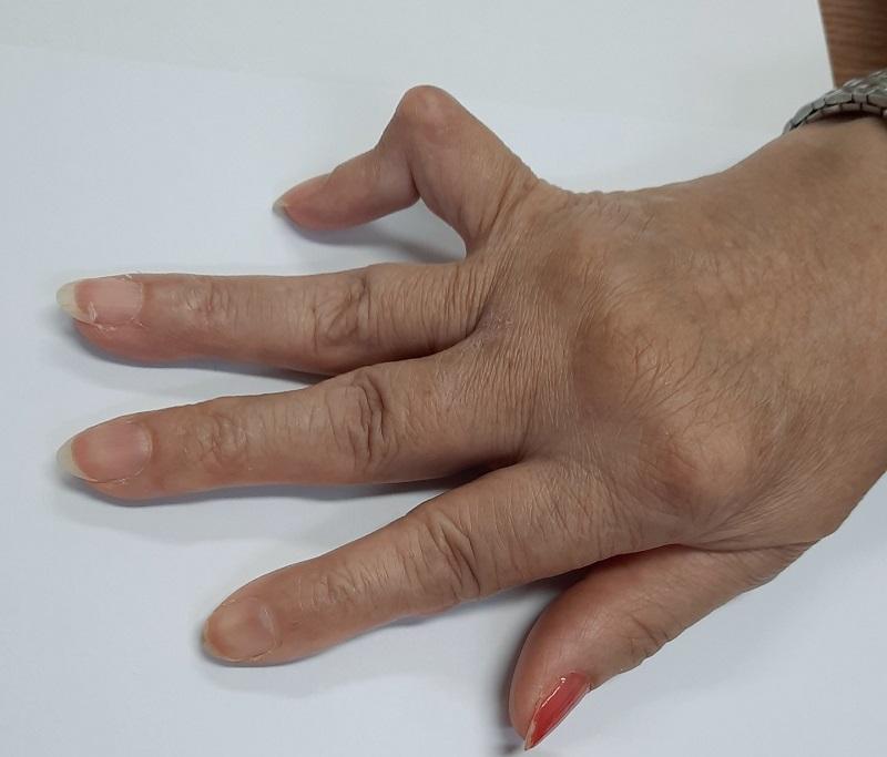 Viêm khớp dạng thấp là một bệnh lý mãn tính xảy ra do các rối loạn tự miễn xúc tác hình thành