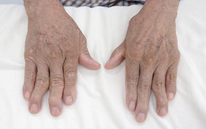 Bệnh viêm đa khớp dạng làm ảnh hưởng đến niêm mạc khớp của người bệnh