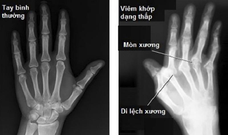 Hình ảnh trên X-quang cho thấy các khớp bị biến dạng do viêm khớp dạng thấp gây ra