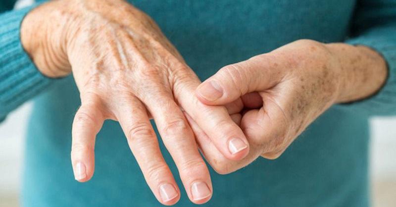 Người bệnh có dấu hiệu sưng đau tại các khớp