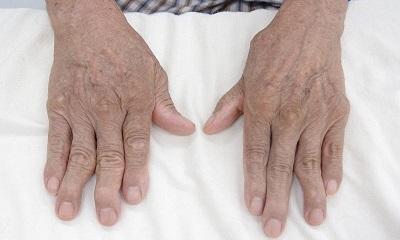 Viêm khớp dạng thấp là gì? Nguyên nhân, dấu hiệu của bệnh ai cũng phải biết