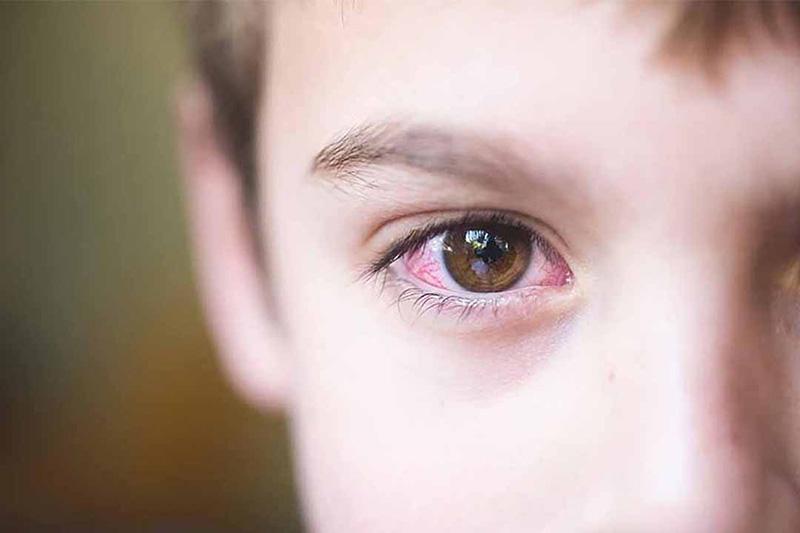 Thiếu vitamin A khiến mắt dễ khô mỏi