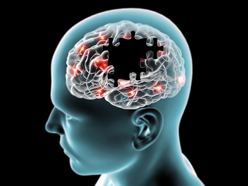 Công dụng của vitamin C và vitamin E với não bộ