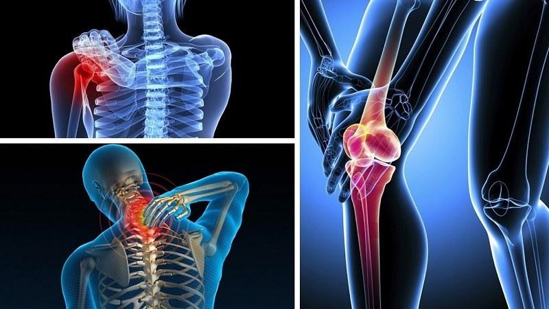 Calciferol tăng cường khả năng hấp thụ canxi của xương