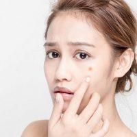 Các loại kem trị mụn sưng đỏ có thể trị mụn hiệu quả