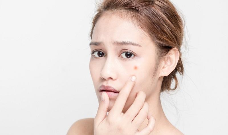Sử dụng kem trị mụn sưng đỏ đúng cách có thể giảm mụn hiệu quả
