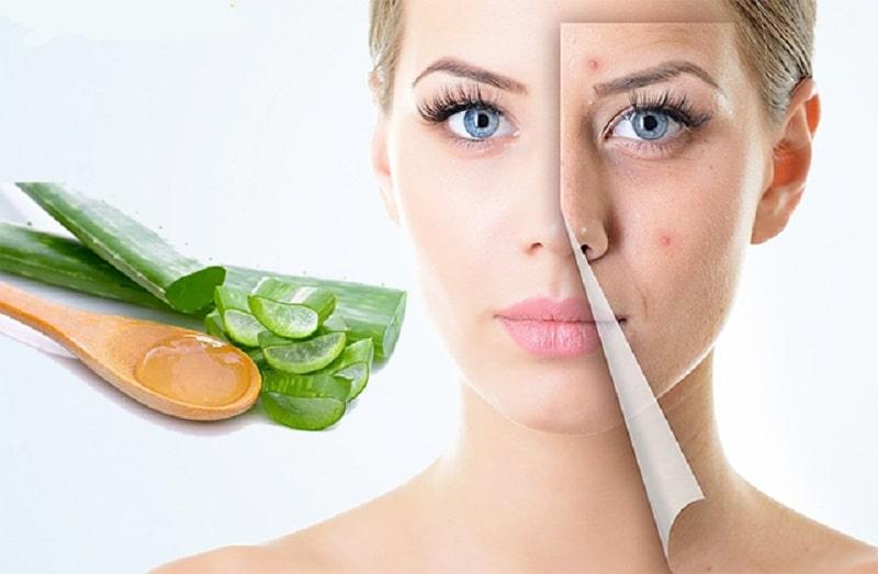 Nha đam vừa có tác dụng trị mụn, vừa có tác dụng làm đẹp và giữ ẩm cho da rất tốt
