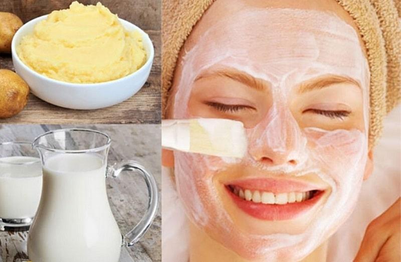 Khoai tây và sữa tươi giúp làn da mềm mại, sáng màu da, trị mụn sưng viêm và dưỡng ẩm