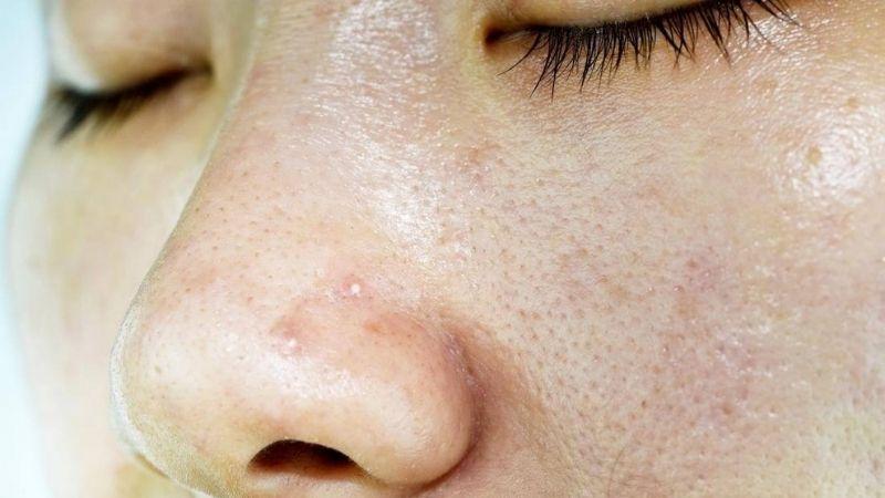 Mụn hình thành do bã nhờn và bụi bẩn tích tụ nhiều trên da