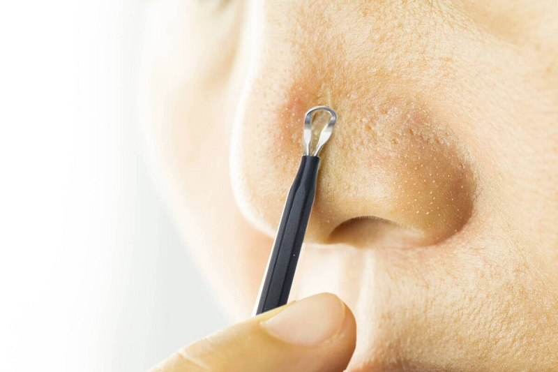 Cần sử dụng các dụng cụ nặn mụn chuyên dụng được khử trùng để đảm bảo an toàn cho da