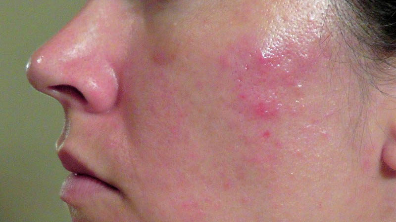 Nếu không được điều trị kịp thời và đúng cách, mun sưng đỏ có thể để lại sẹo thâm, rỗ rất khó phục hồi