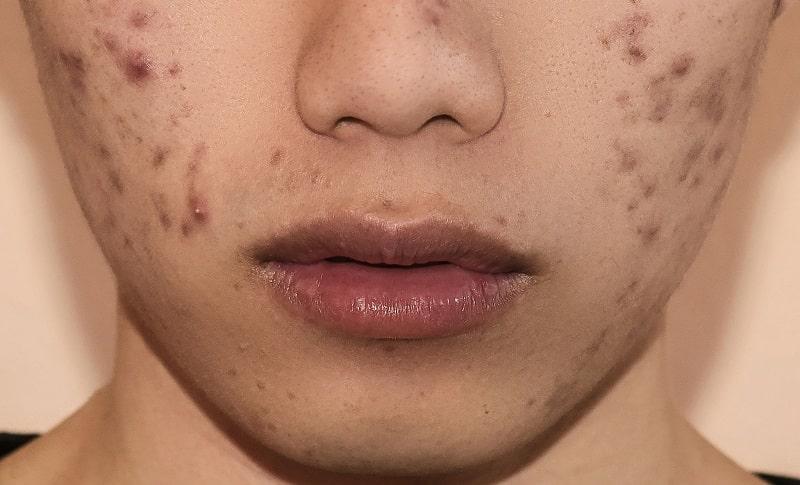 Mụn thâm thực chất là một vùng da bị tổn thương do mụn trứng cá, mụn viêm, mụn bọc gây ra