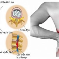 Thoát vị đĩa đệm cột sống thắt lưng gây ra các cơn tê chân