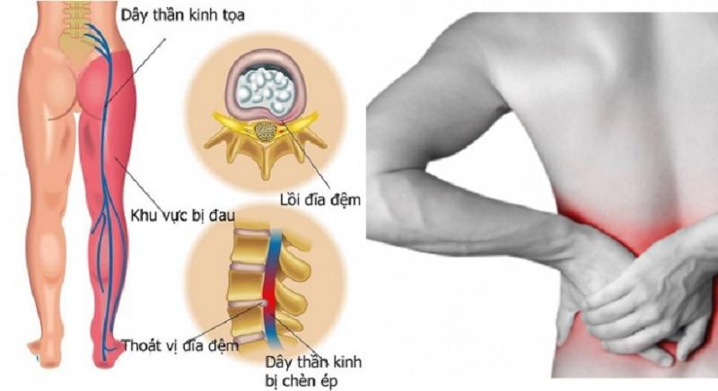 Thoát vị đĩa đệm gây tê chân là biên chứng phổ biến