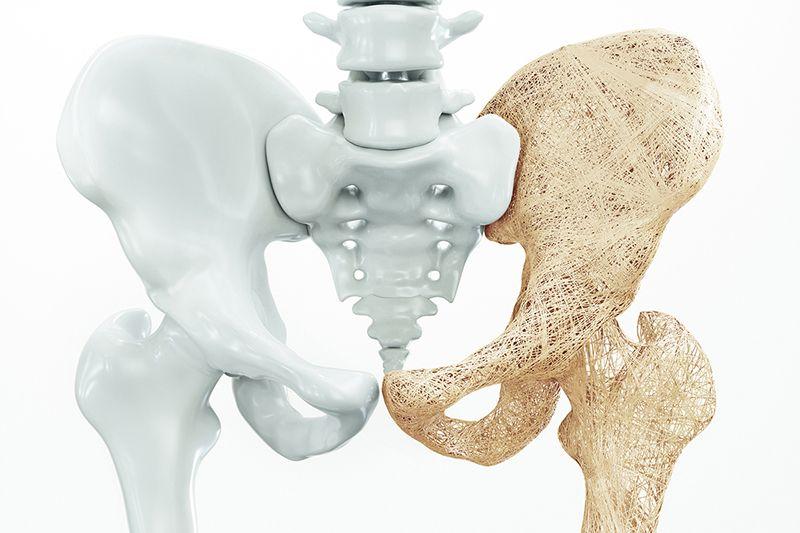 Thuốc điều trị loãng xương đang là phương pháp được nhiều người bệnh áp dụng bởi đem lại hiệu quả cao