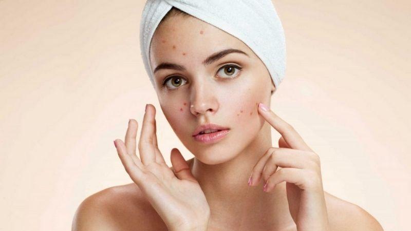 Làn da bị thâm mụn nên sử dụng mật ong