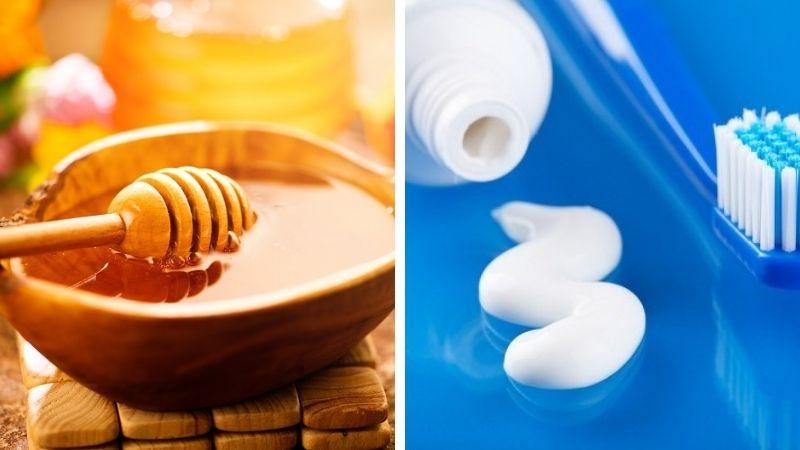 Trị mụn thâm bằng mật ong và kem đánh răng