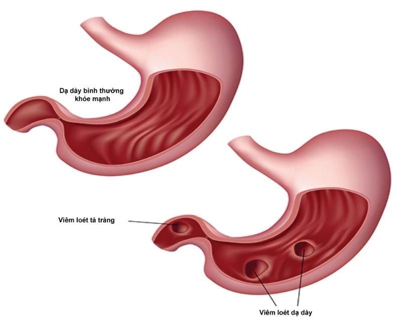 Viêm loét dạ dày tá tràng có nguy hiểm không