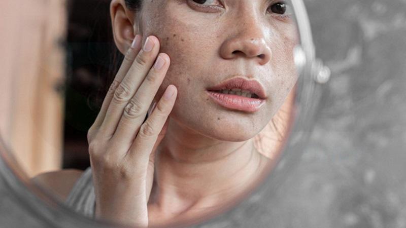 Sau khi đốt tàn nhang bạn cần phải biết chăm sóc da đúng cách để tránh tái phát