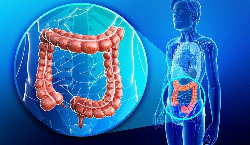 Viêm đại trang là căn bệnh đường ruột thường gặp ở nhiều người