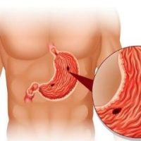 Viêm loét dạ dày là bệnh gì? Có gây nguy hiểm không? Hướng dẫn cách chữa hiệu quả