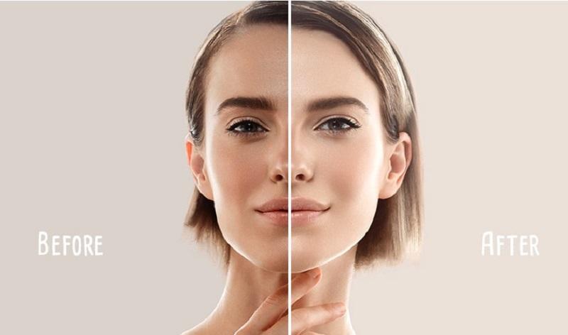 Dưỡng trắng da là một nhu cầu thiết yếu hiện nay