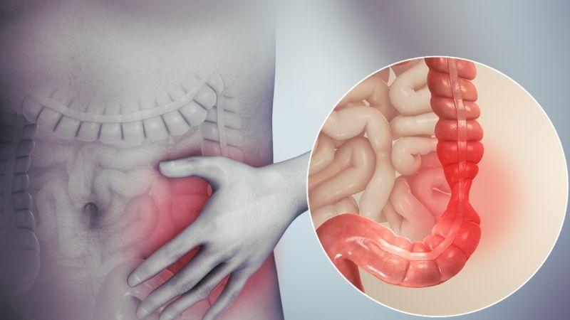 Hội chứng ruột kích thích gây ảnh hưởng lớn tới cân nặng của bệnh nhân